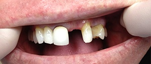 Patient 2 smile with missing front tooth before