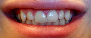 Patient 3 bright white smile after cosmetic dentistry