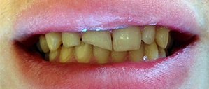 Patient 3 yellowed smile before cosmetic dentistry