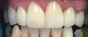 Patient 5 with healthy white teeth after treatment