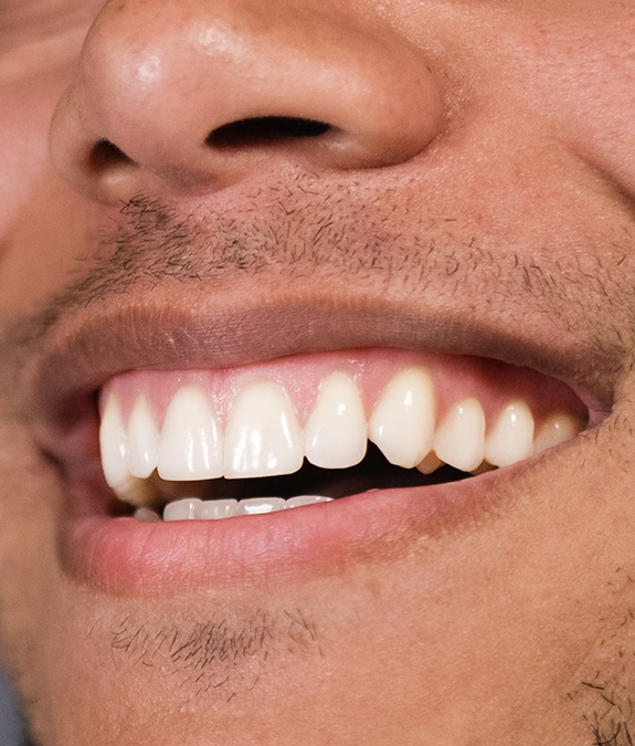 close up of man's smile after gum recontouring